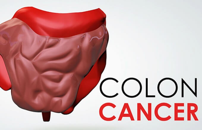 Colon and rectal cancer screenings should start at 45, not 50
